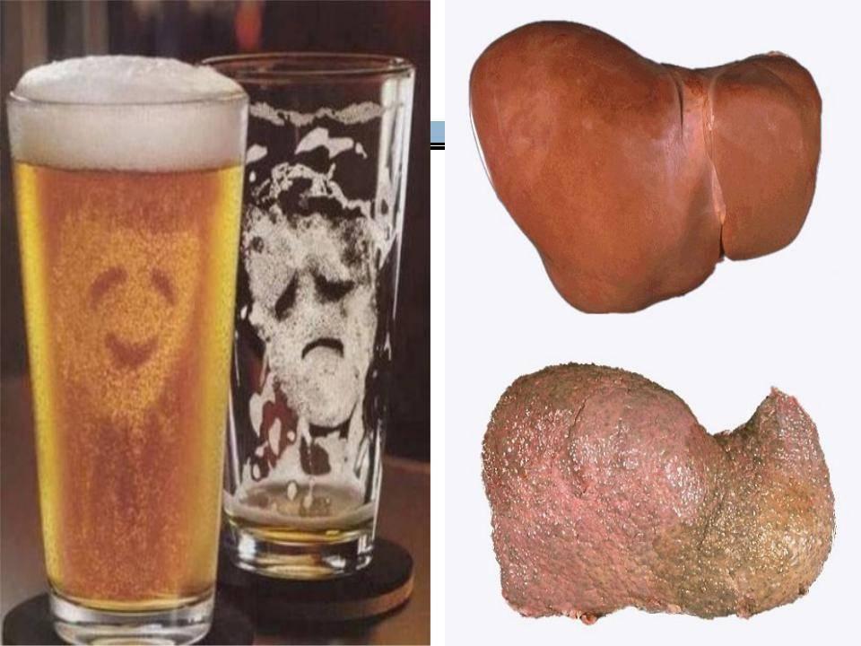 Алкогольные напитки при холецистите: последствия употребления
