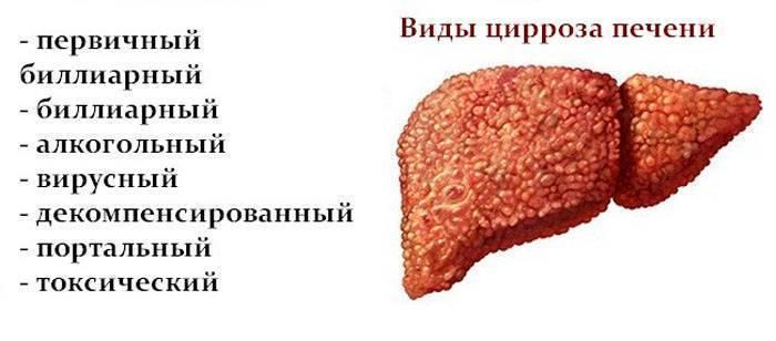 Мелкоузловой цирроз печени причины и продолжительность