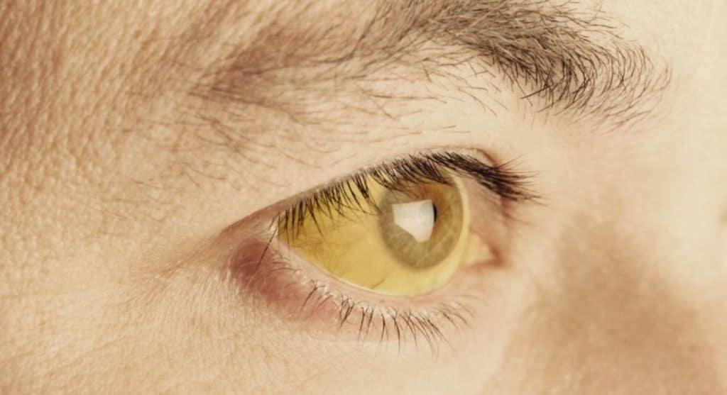 Желтая кожа и глаза: причины. о чем говорят желтые белки глаз | здоровье человека