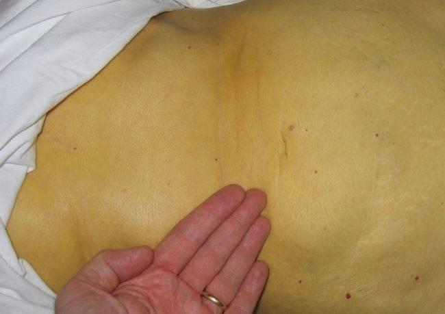 Цирроз печени: причины, симптомы и лечение заболевания