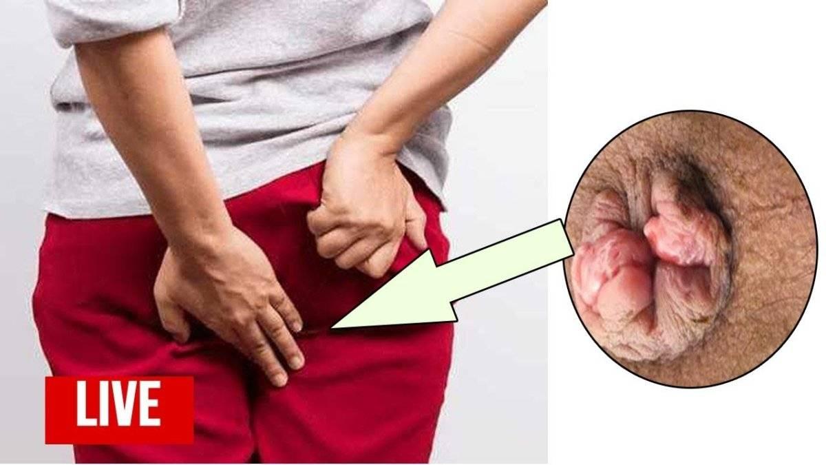 Кал с кровью и кровотечение из заднего прохода: симптомы, причины и лечение