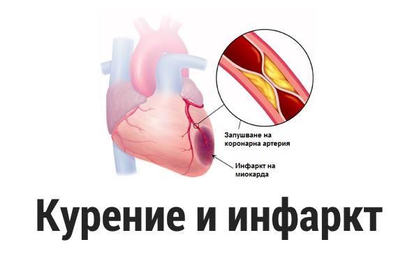 Как курение влияет на сердце и сосуды и почему болит «мотор» курильщика после отказа от сигарет? - здоровье
