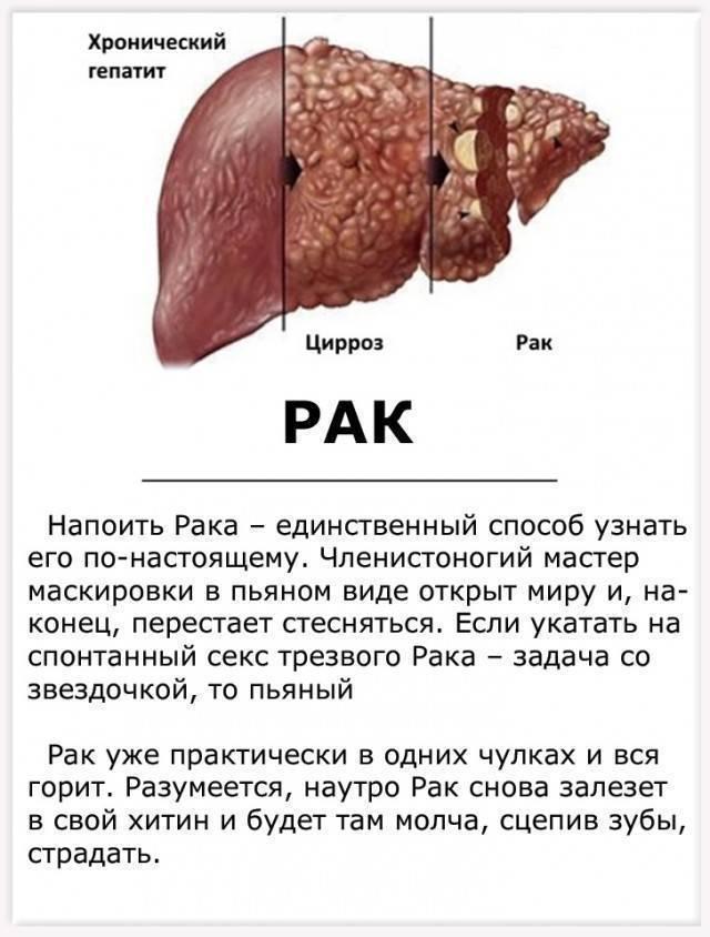 Чем цирроз печени отличается от рака?