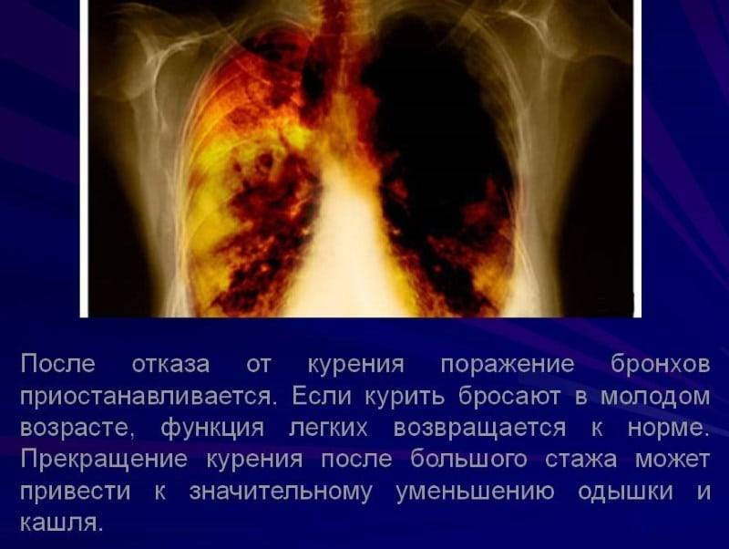 Можно ли курить во время бронхита - wikivrachinfo.ru