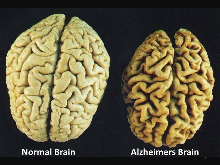 Сенильная деменция - лечение, симптомы, причины, прогноз