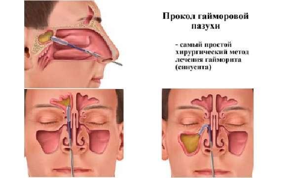 Как лечат гайморит в больнице