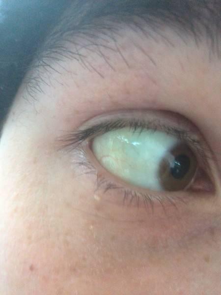 Желтые склеры глаз - причины и симптомы у взрослых