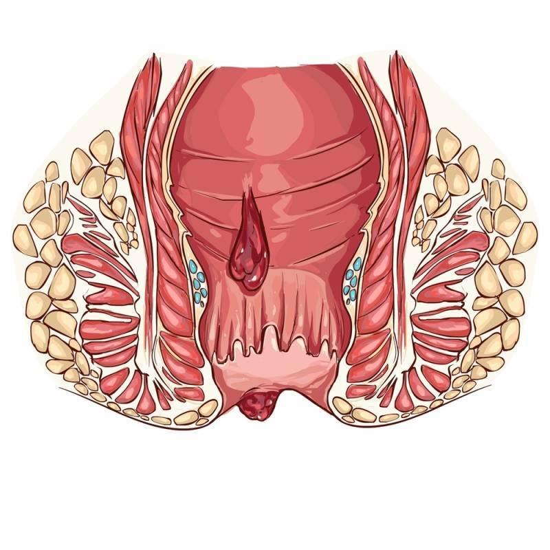 Кровь из заднего прохода и простатит уролесан или канефрон что лучше при простатите