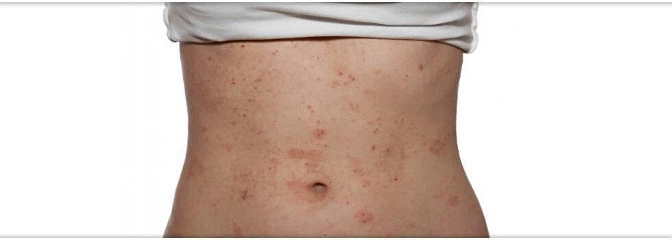 Зуд кожи тела при заболеваниях печени - кожный зуд при заболевании циррозе и гепатите с