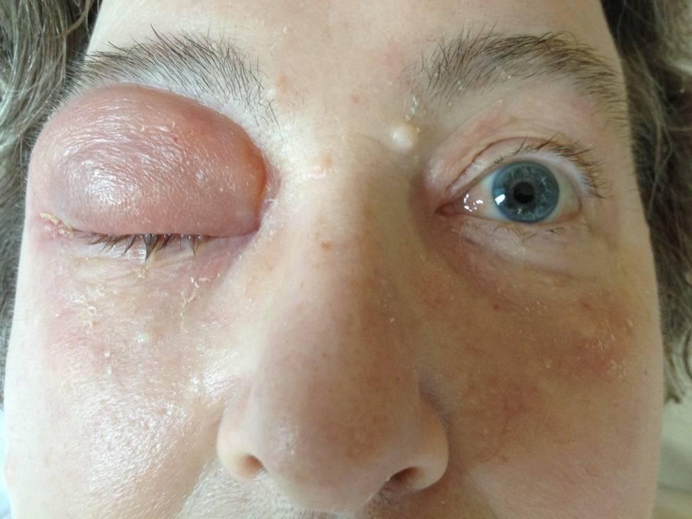 Отеки на лице. мешки под глазами, причины и лечение