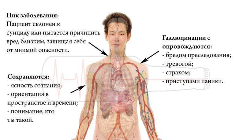 Алкоголизм приводит к шизофрении: симптомы, формы, виды лечение