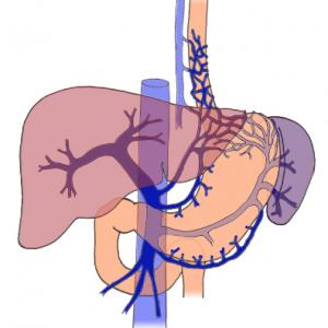 Портальная гипертензия при циррозе печени: симптомы болезни, диагностика и лечение, прогноз исхода заболевания