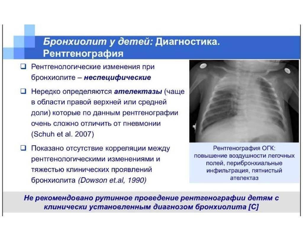Облитерирующий бронхиолит у взрослых: симптомы, лечение pulmono.ru облитерирующий бронхиолит у взрослых: симптомы, лечение