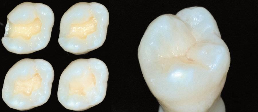 Можно ли курить после пломбирования зуба и временной пломбы