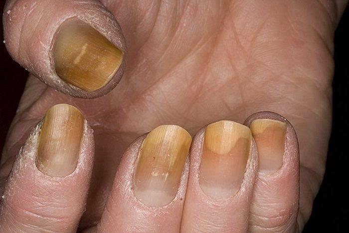 Как отбелить пожелтевшие ногти: 5 простых и эффективных способов