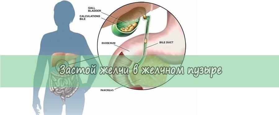 Плюсы и минусы применения расторопши для желчного пузыря