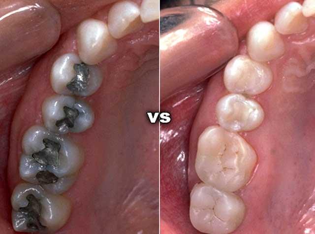 Можно ли курить после пломбирования зуба — зубы