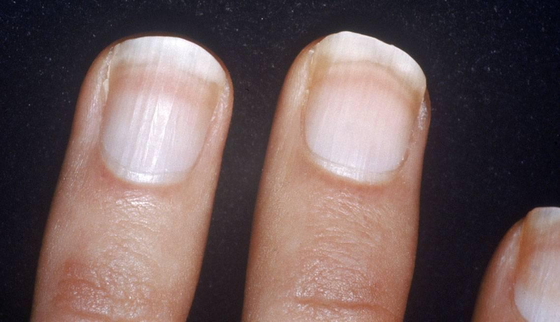 Никотин на пальцах: как очистить