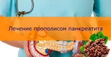 Лечение острого панкреатита в домашних условиях народными средствами
