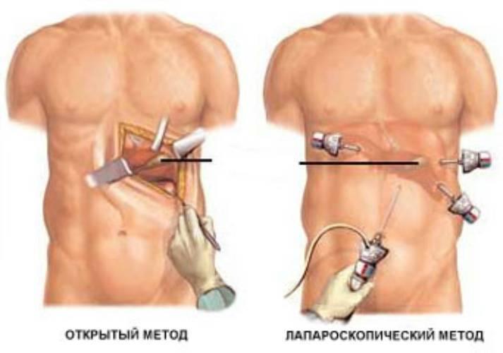 Последствия лапароскопии