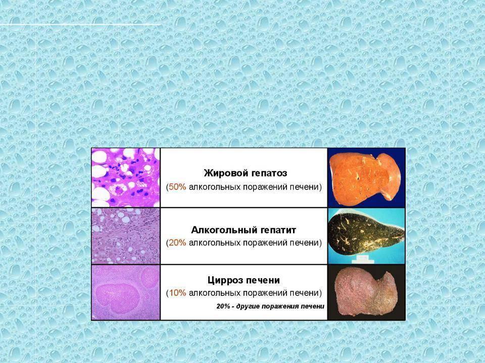 Причины, патогенез, классификация, симптомы и лечение абп