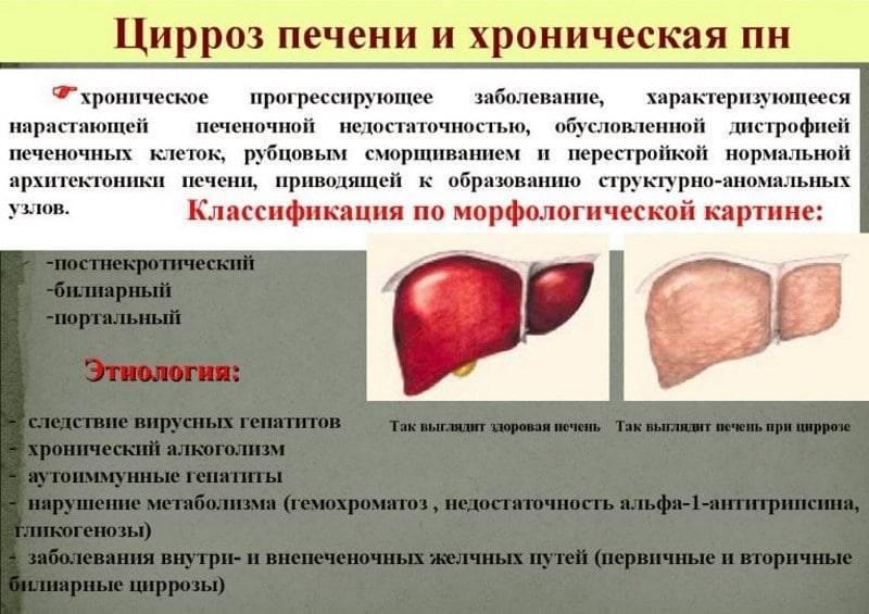 Заразен ли больной циррозом печени