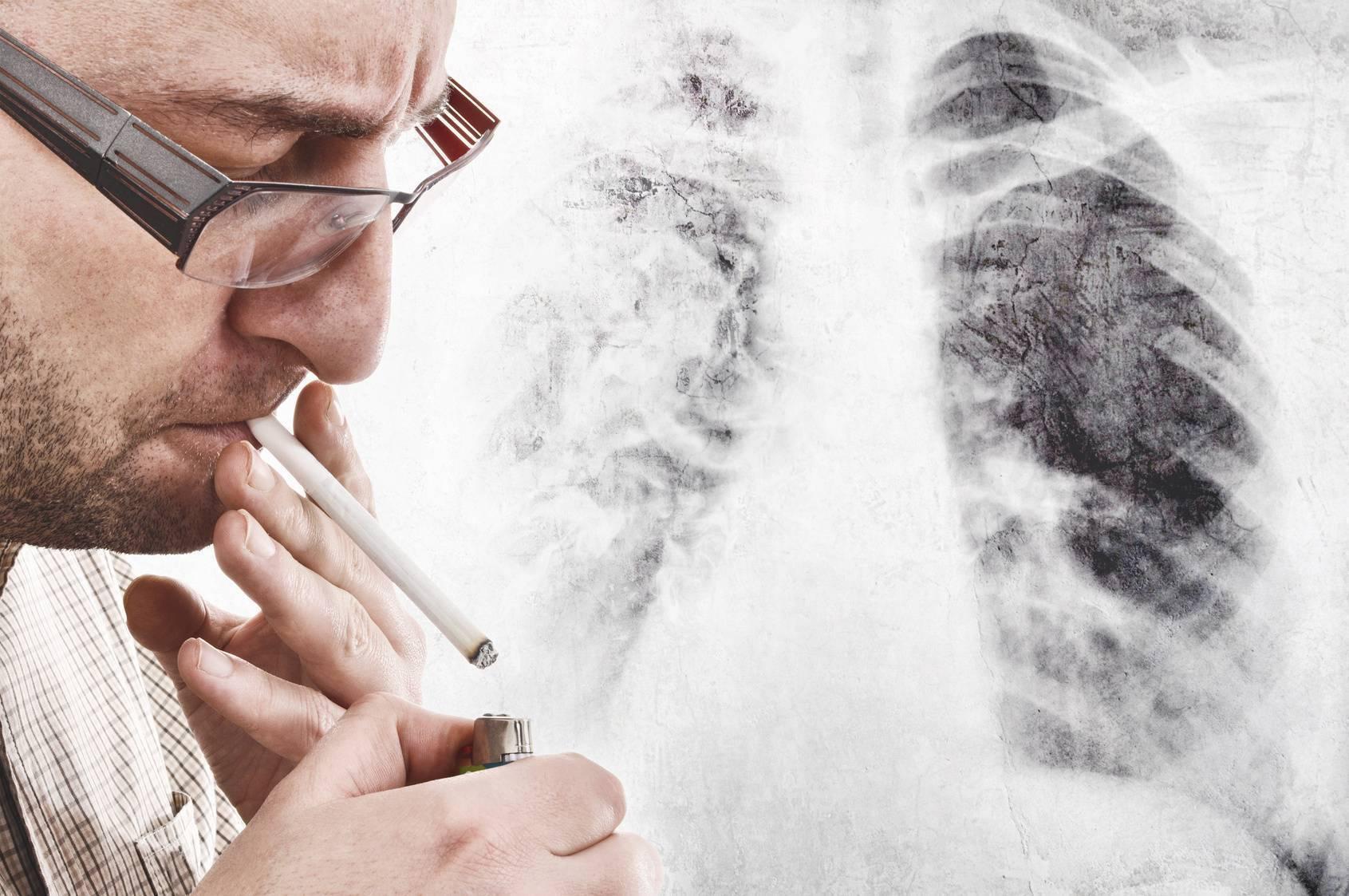 Влияет ли курение на зрение | как курение влияет на зрение