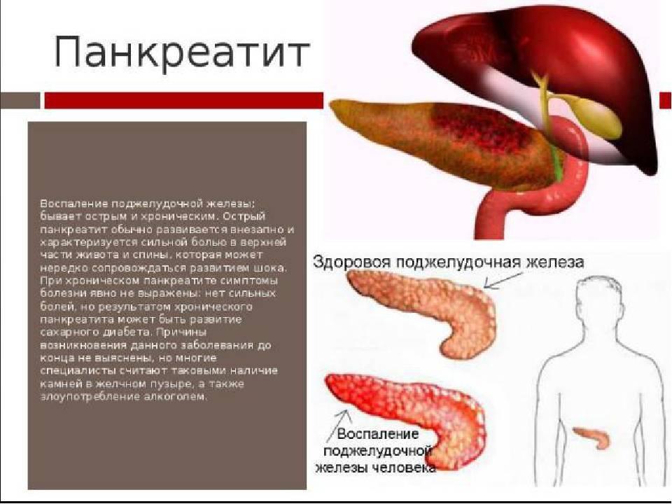 Воспаление поджелудочной железы курение