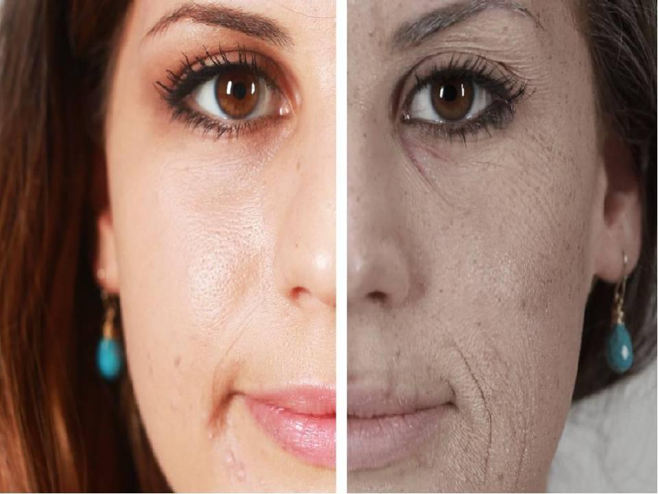 Как курение отражается на состоянии кожи