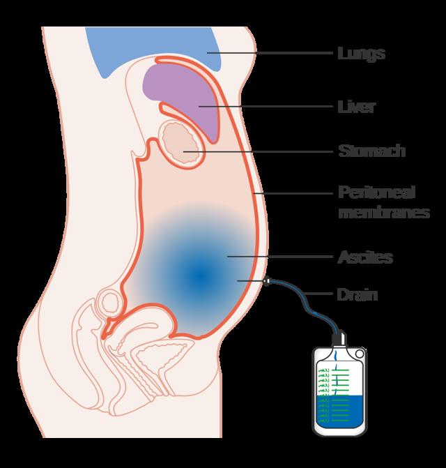 Асцит брюшной полости - лечение, симптомы, причины, диагностика