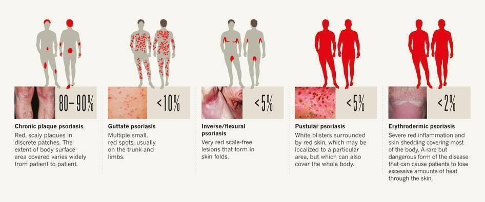 Что можно и чего нельзя при псориазе? | компетентно о здоровье на ilive