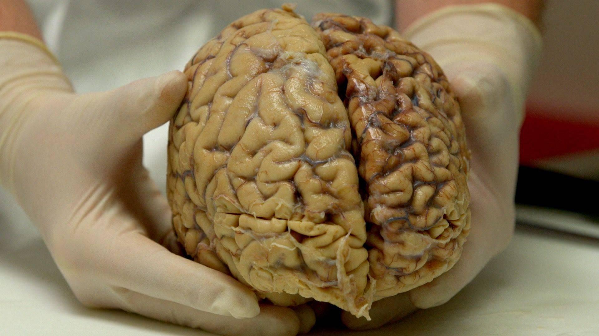 После отравления головного мозга алкоголем как восстановить память