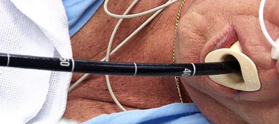 Можно ли курить перед гастроскопией желудка и как влияет курение