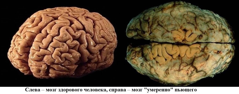 Влияние алкоголя на мозг человека - какие могут быть последствия