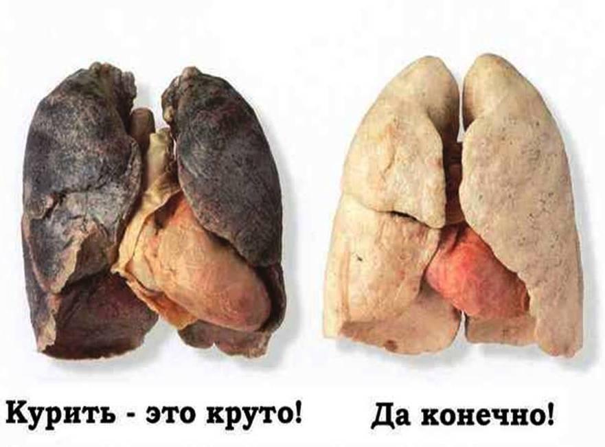 Какие последствия наступают при систематическом употреблении марихуаны. последствия курения сигарет: все риски (фото курильщиков с разным стажем)