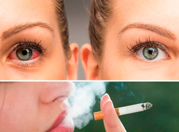 Влияет ли курение на зрение человека и как его восстановить? А также какие заболевания глаз вызывает сигарета?