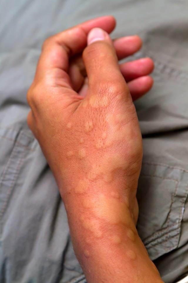 Аллергическая реакция на спиртное: причины и симптоматика алкогольной крапивницы с фото