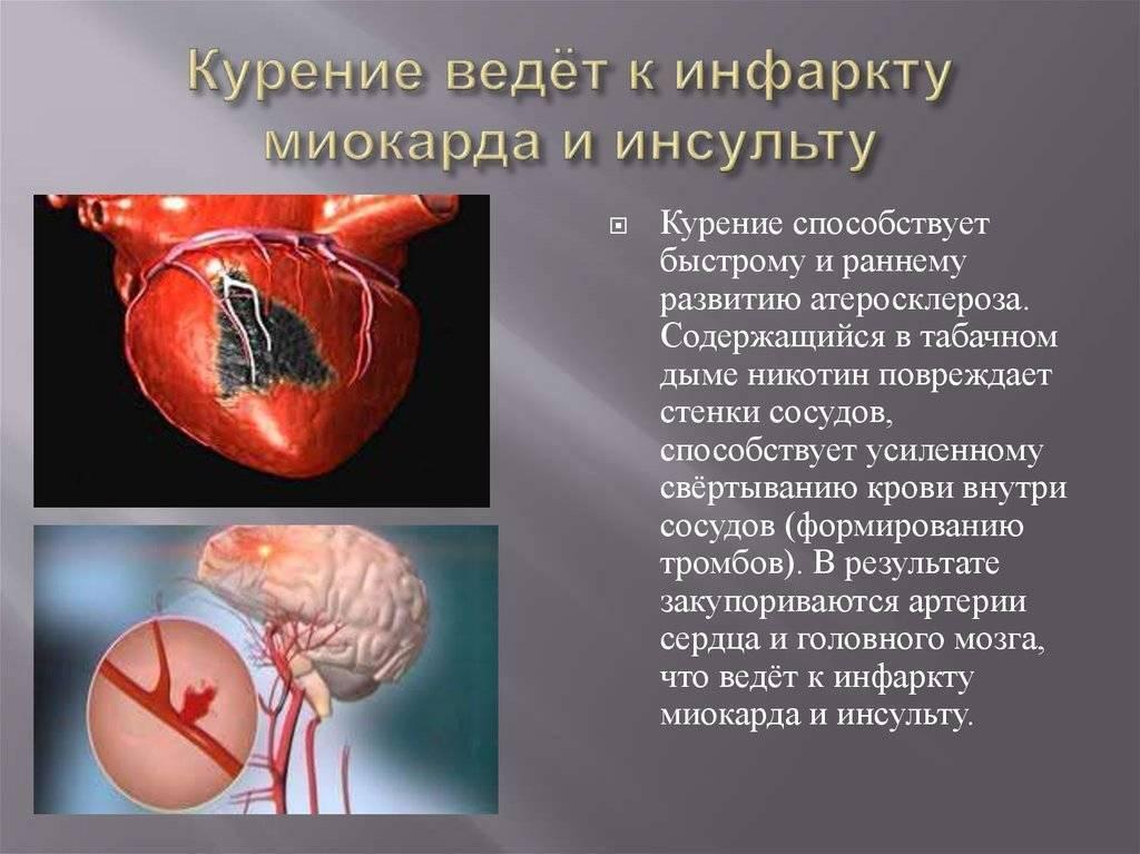 Алкоголь после инфаркта: можно или нельзя, его влияние на слабое здоровье