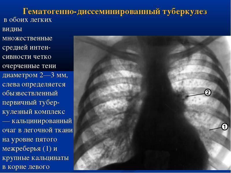 Возможные причины и методы лечения воспаления лимфоузлов в шее