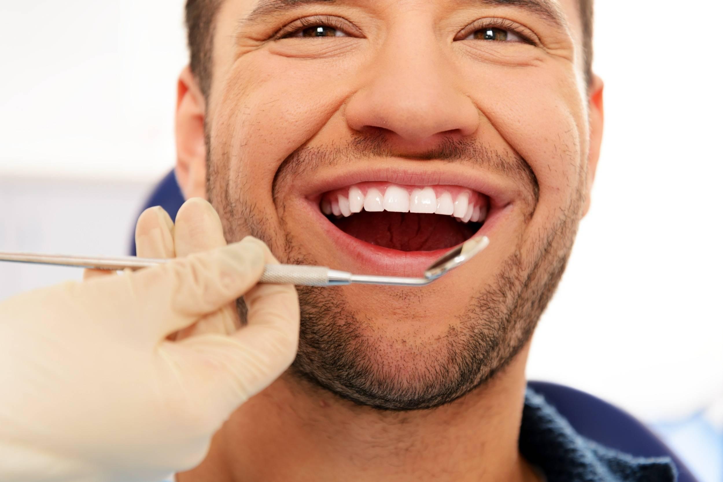 Можно ли курить айкос после отбеливания, удаления и чистки зубов