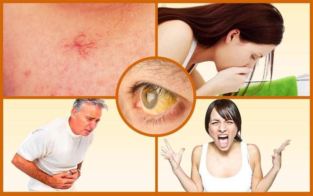 Поражение печени: симптомы, виды, помощь и методы лечения