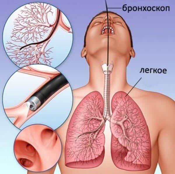 Чем опасно курение при бронхите? - лечим всё