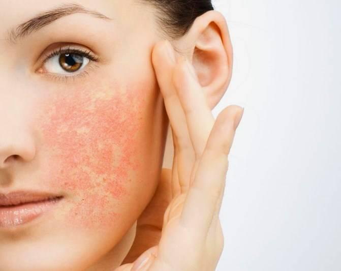Прыщи после 50 лет у женщин — что это, на лице, причины, лечение, что делать, щитовидка