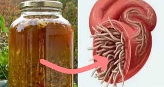 Могут ли глисты быть причиной лишнего веса – связь глистов и пищеварения | rvdku.ru