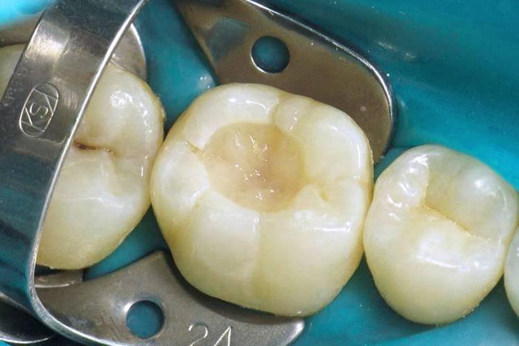 Можно ли курить после установки пломбы на зубы?