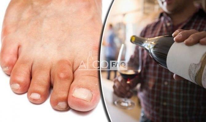 Пиво при подагре, водка и красное вино: можно ли пить алкоголь, как совмещать с недугом и какое спиртное разрешено, что делать, чтобы уменьшить воздействие? | статья от врача