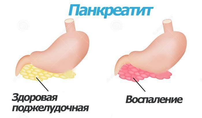 Почему нельзя курить при панкреатите? влияние сигарет на поджелудочную железу