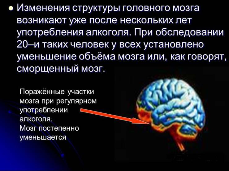 Влияние алкоголя на мозг и нервную систему: механизм действия