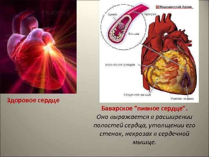 Симптомы и лечение синдрома пивного сердца - медконсульт
