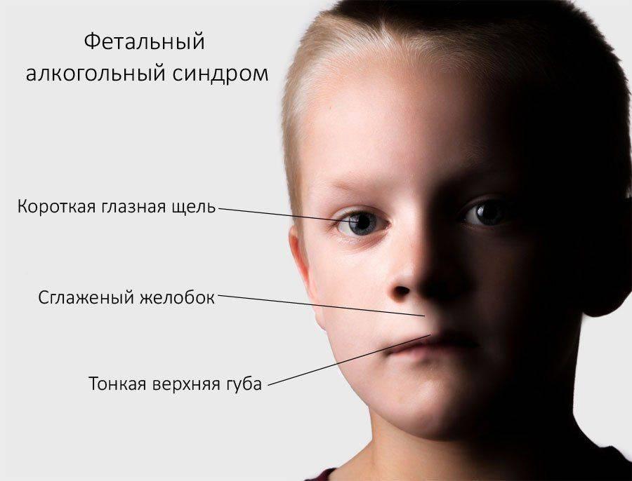 Особенности проявлений синдрома вда у детей пьяниц: особенности психики и физиологии
